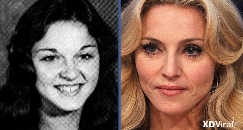 23 Famous before – after
